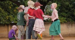 TANZANIA, THE ALBINOS' STOLEN CHILDHOO